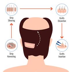 Hair Max - FUT Hair Transplant